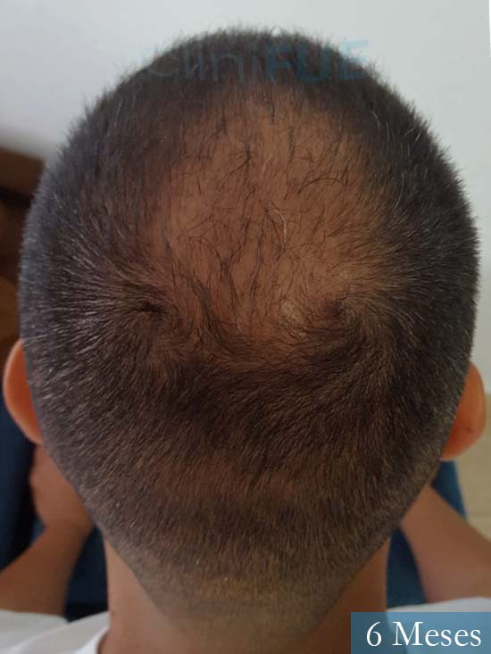 Raul 37 Murcia trasplante capilar 6 meses 6