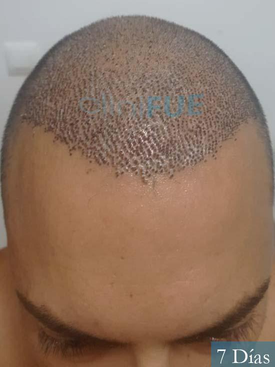 Christian 34 Las Palmas trasplante capilar 7 dias