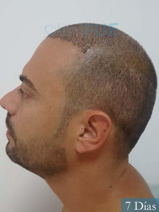 Christian 34 Las Palmas trasplante capilar 7 dias 4