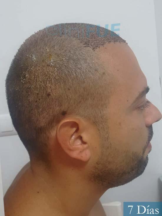 Christian 34 Las Palmas trasplante capilar 7 dias 3