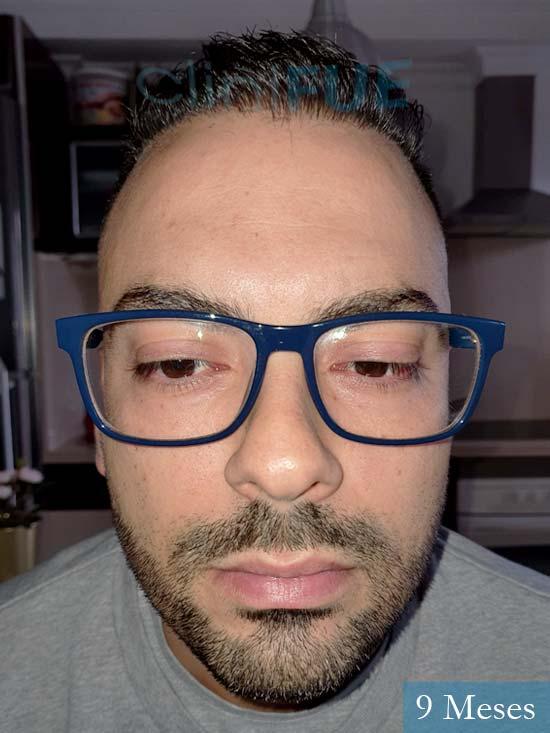 Raul 37 Murcia trasplante capilar 9 meses 1
