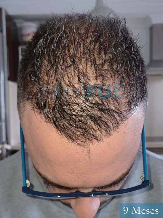 Raul 37 Murcia trasplante capilar 9 meses 2