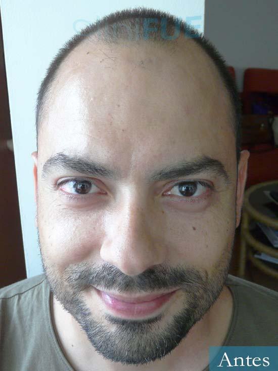 Christian 34 Las Palmas trasplante capilar