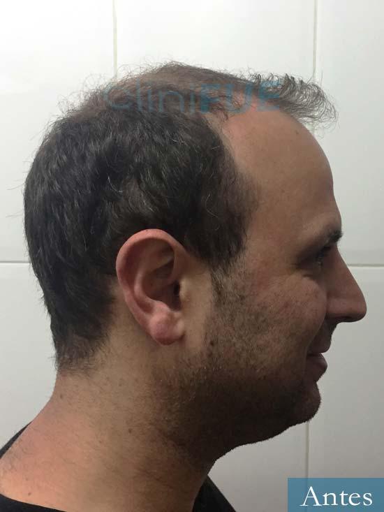 Raul 37 Murcia trasplante capilar antes 3