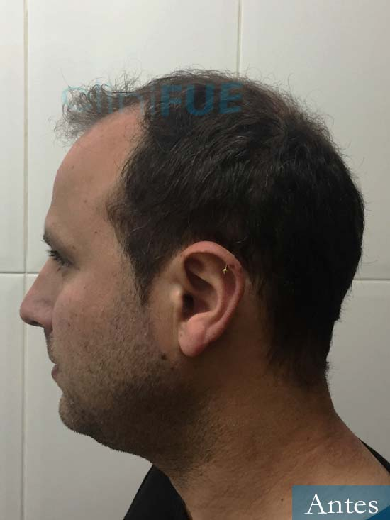 Raul 37 Murcia trasplante capilar antes 5