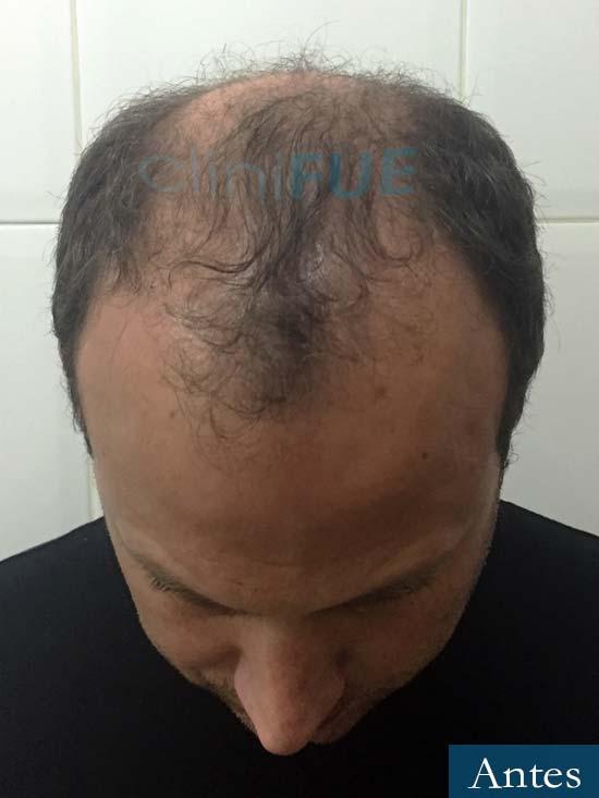 Raul 37 Murcia trasplante capilar antes