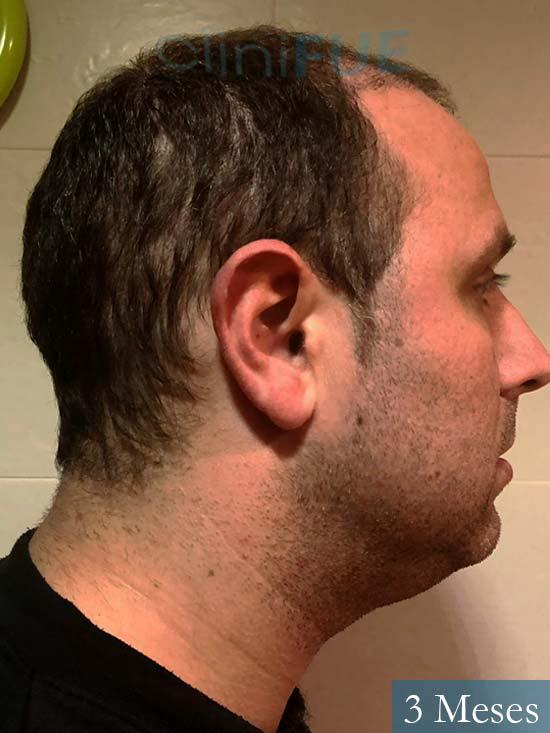 Raul 37 Murcia trasplante capilar 3 meses 4