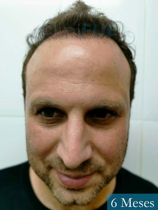 Raul 37 Murcia trasplante capilar 6 meses