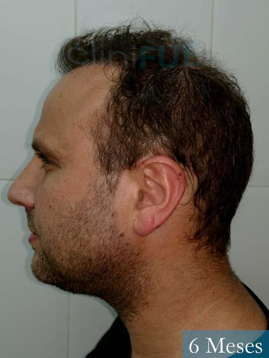 Raul 37 Murcia trasplante capilar 6 meses 4