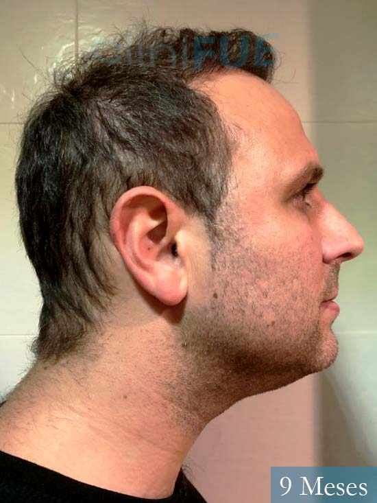 Raul 37 Murcia trasplante capilar 9 meses 3