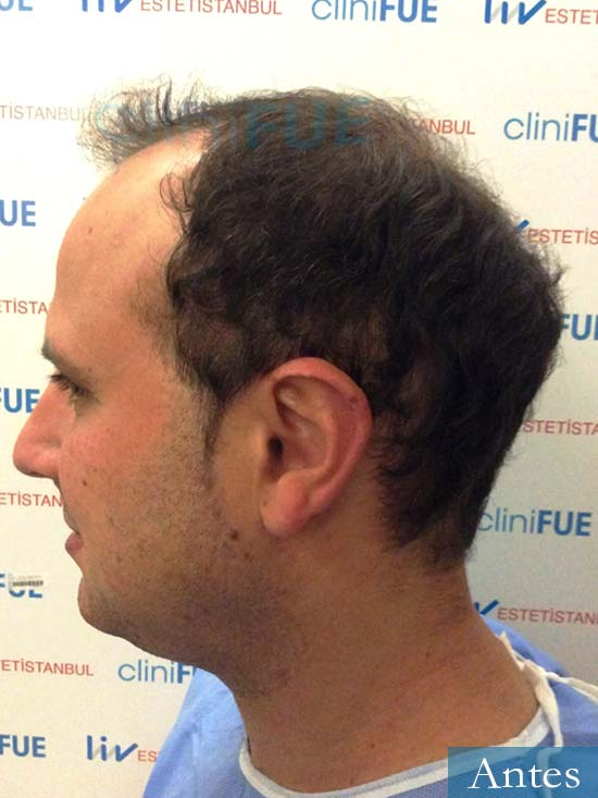 Raul 37 Murcia trasplante capilar dia operacion antes 3
