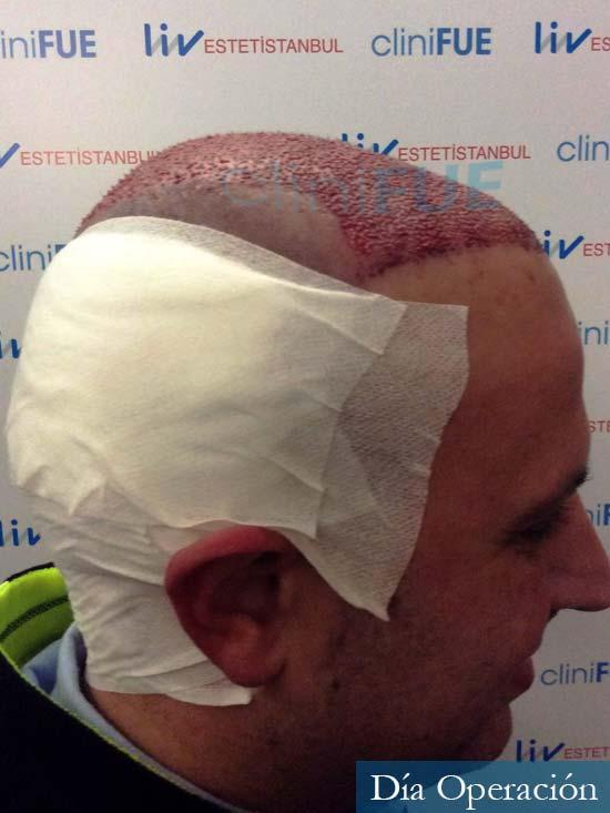 Raul 37 Murcia trasplante capilar dia operacion 2