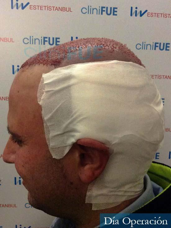 Raul 37 Murcia trasplante capilar dia operacion 4