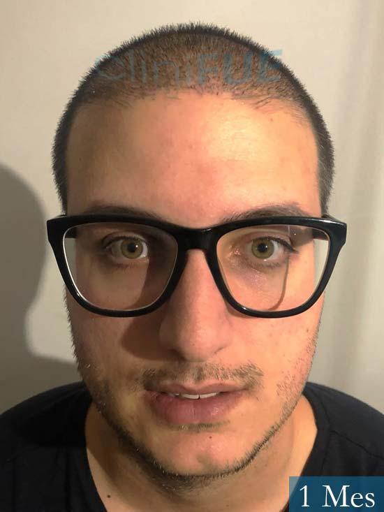 Carlos 30 Barcelona trasplante capilar 1 mes