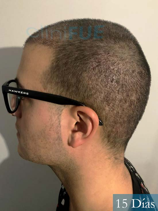 Carlos 30 Barcelona trasplante capilar 15 dias 5