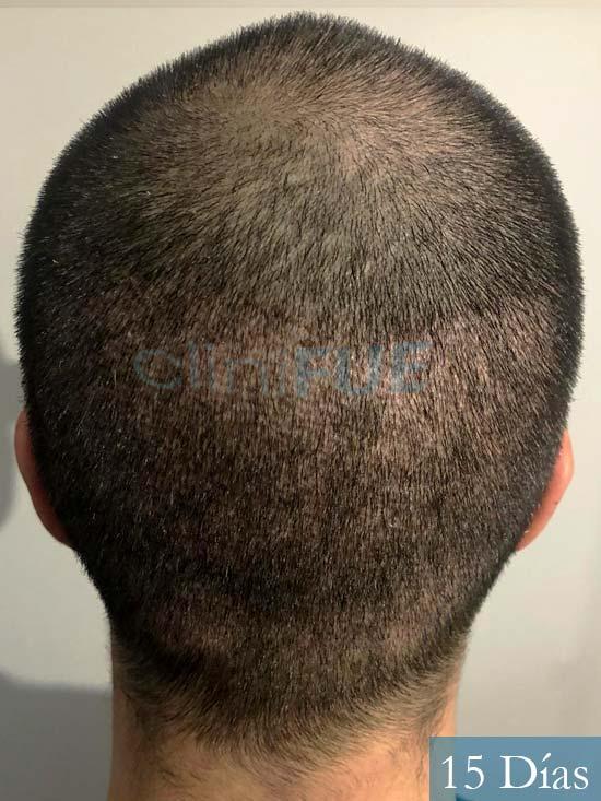 Carlos 30 Barcelona trasplante capilar 15 dias 6