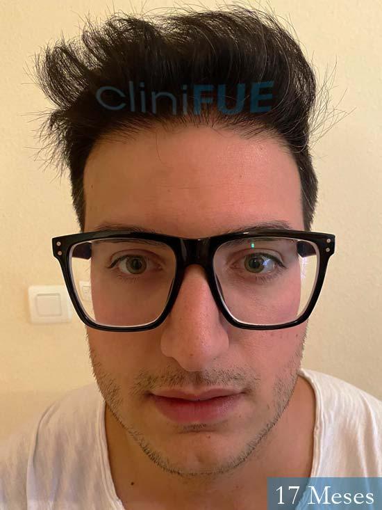 Carlos 30 Barcelona trasplante capilar 17 meses