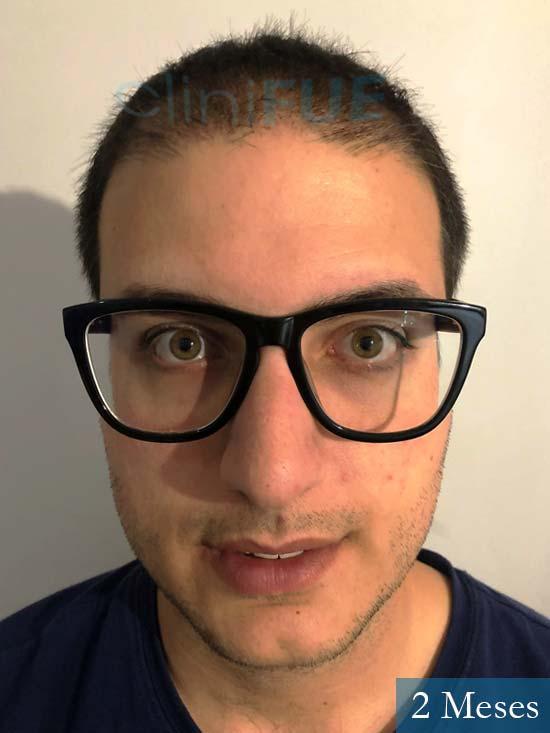 Carlos 30 Barcelona trasplante capilar 2 meses