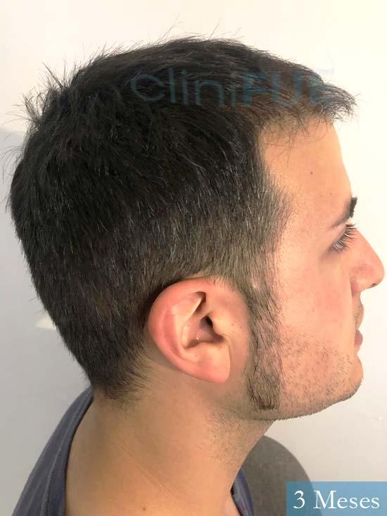 Carlos 30 Barcelona trasplante capilar 3 meses 4