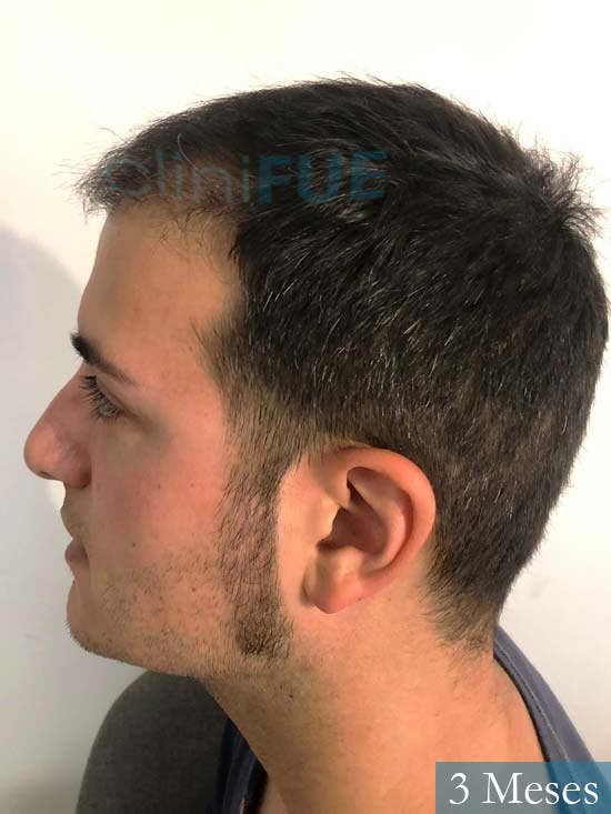 Carlos 30 Barcelona trasplante capilar 3 meses