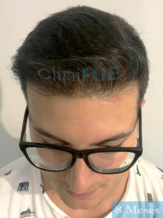 Carlos 30 Barcelona trasplante capilar 8 meses 2