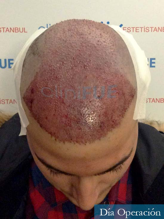 Carlos 30 Barcelona trasplante capilar dia operacion 2