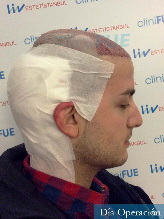 Carlos 30 Barcelona trasplante capilar dia operacion 3