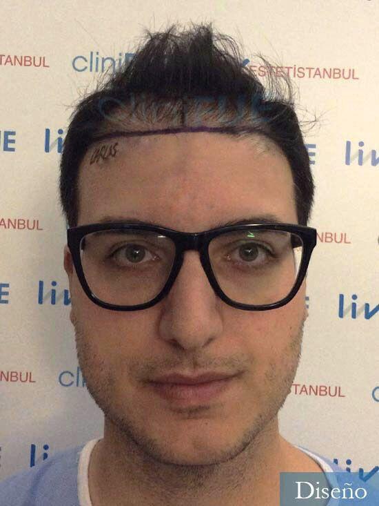 Carlos 30 Barcelona trasplante capilar dia operacion diseno