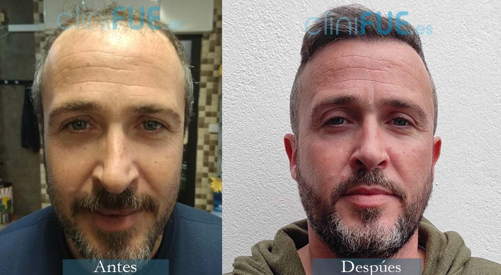 Trasplante Capilar de José Antonio 39 Años de Sevilla con cliniFUE