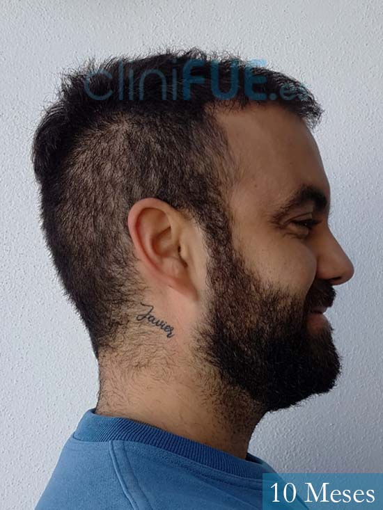 Alejandro 32 Granda injerto de pelo 10 meses 2