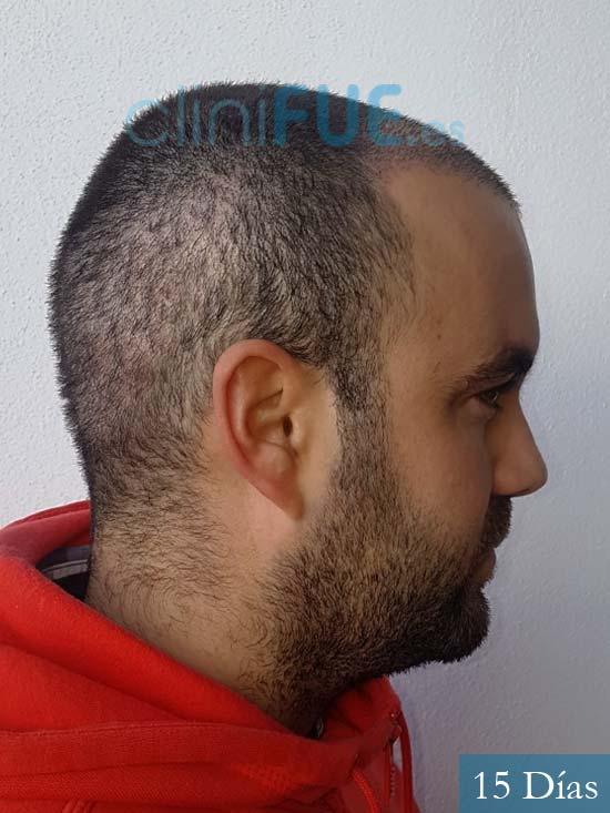 Alejandro 32 Granda injerto de pelo 15 dias 3
