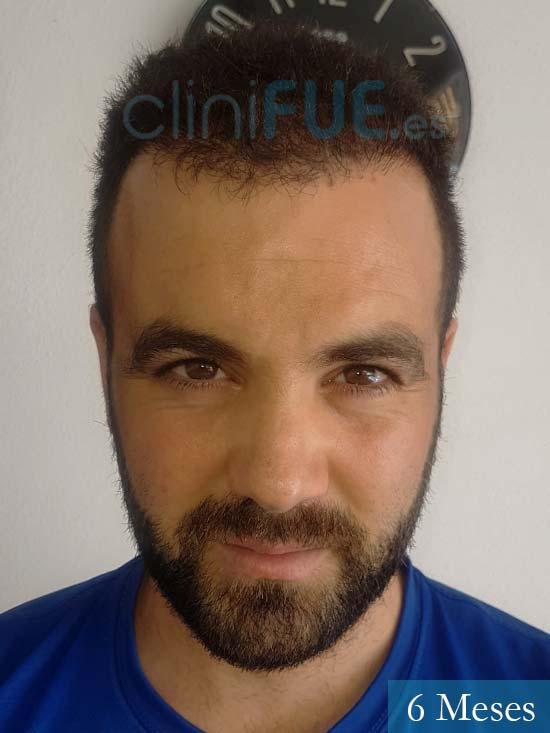 Alejandro 32 Granda injerto de pelo 6 meses