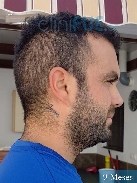 Alejandro 32 Granda injerto de pelo 9 meses 3