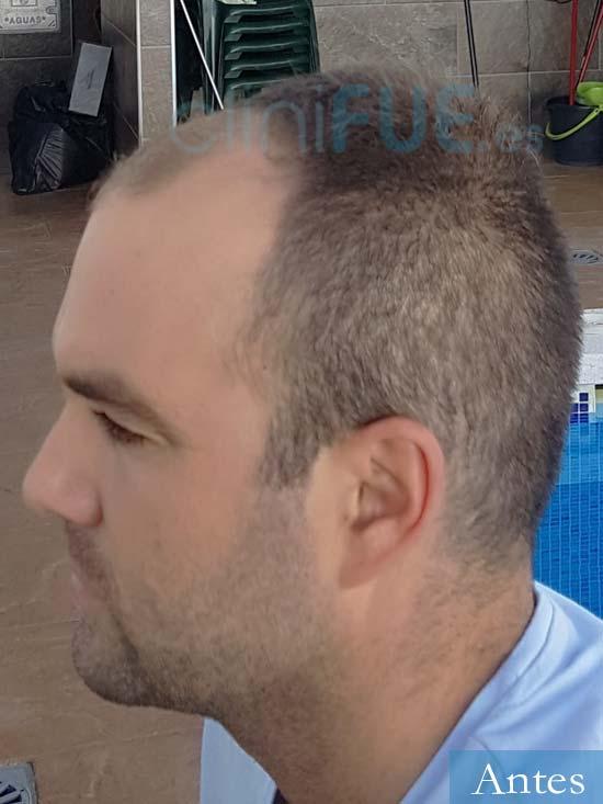 Alejandro 32 Granada injerto de pelo dia operacion Antes 5