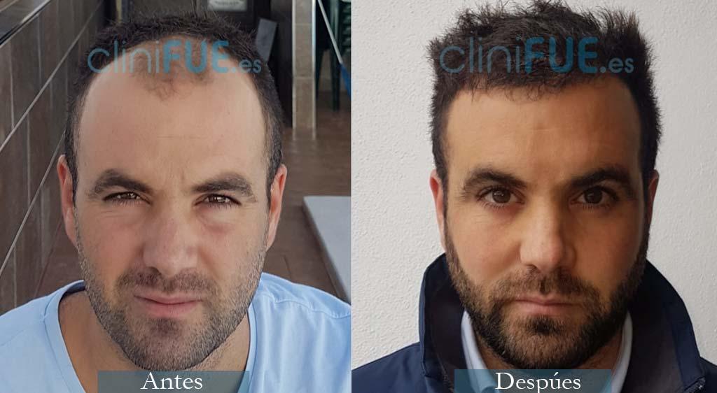 Trasplante Capilar de Alejandro 32 Años de Granada con cliniFUE