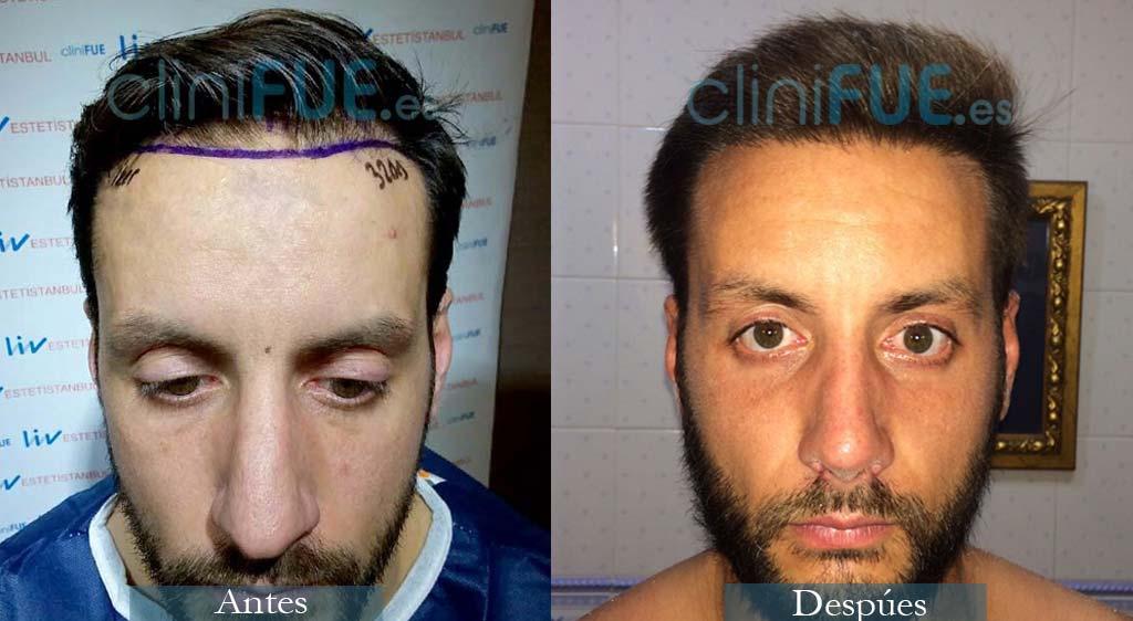 Trasplante capilar de Iker 34 Años de Cantabria con cliniFUE