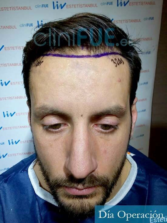 Iker 34 Cantabria injerto capilar dia operacion
