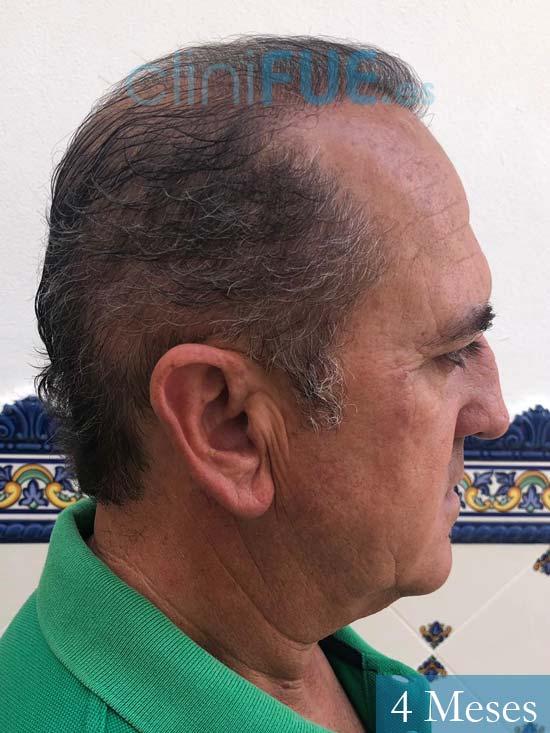 Francisco 54 Alicante injerto de pelo 4 meses