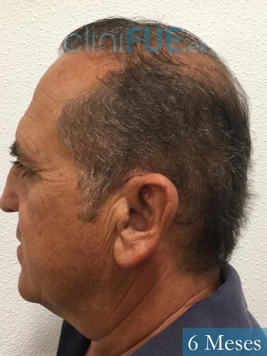 Francisco 54 Alicante injerto de pelo 6 meses