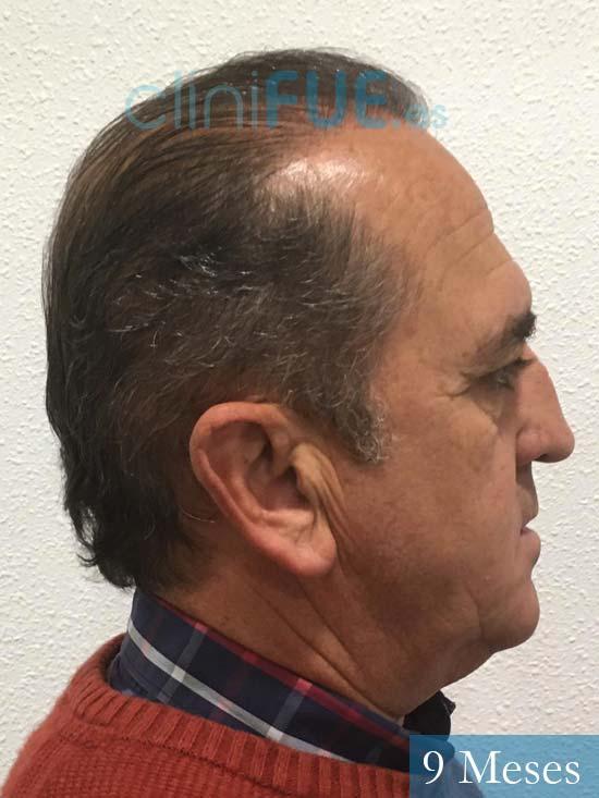 Francisco 54 Alicante injerto de pelo 9 meses