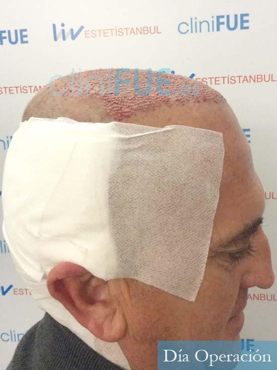 Francisco 54 Alicante injerto de pelo dia operacion