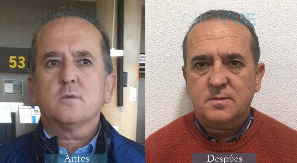 Trasplante Capilar de Francisco 54 Años de Alicante con cliniFUE
