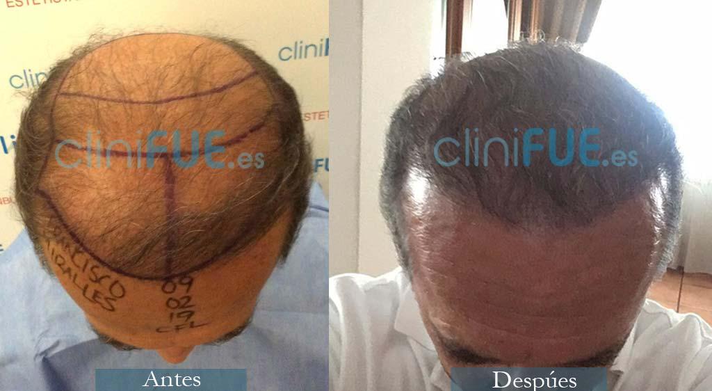 Francisco 54 Alicante injerto de pelo