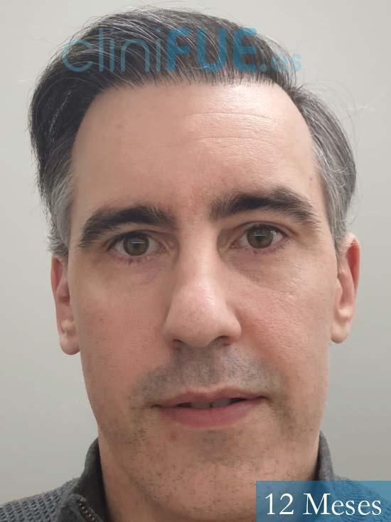 Ibai-40-anos-trasplante-turquia-12 meses