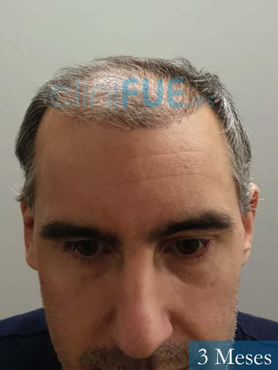 Ibai-40-anos-trasplante-turquia-3 meses