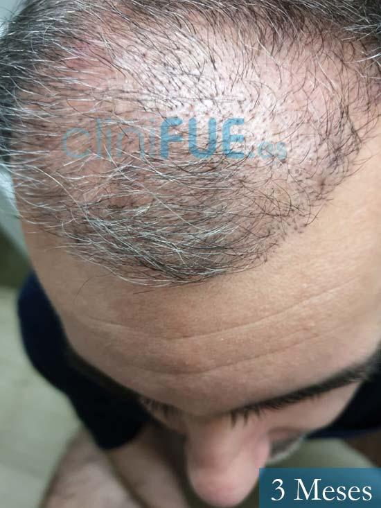 Ibai-40-anos-trasplante-turquia-3 meses 3