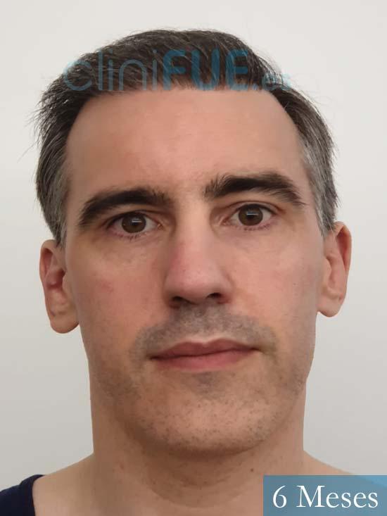 Ibai-40-anos-trasplante-turquia-6 meses