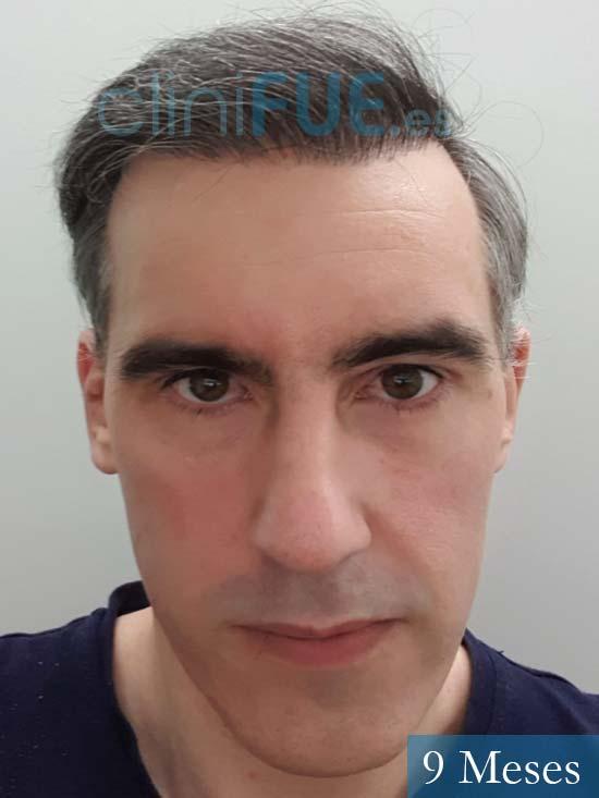 Ibai-40-anos-trasplante-turquia-9 meses