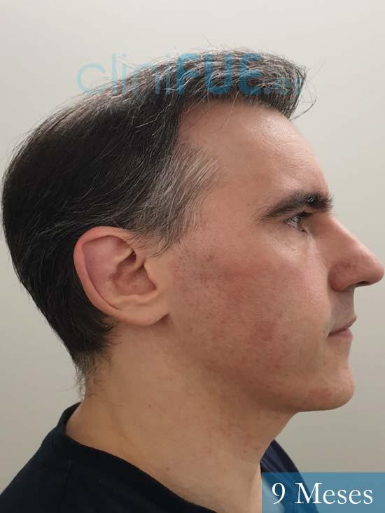 Ibai-40-anos-trasplante-turquia-9 meses 4