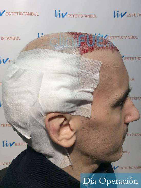 Ibai-40-anos-trasplante-turquia-dia operacion 3